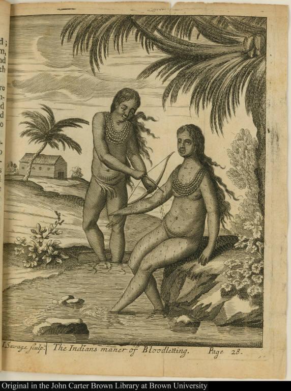 The Indians maner of Bloodletting.